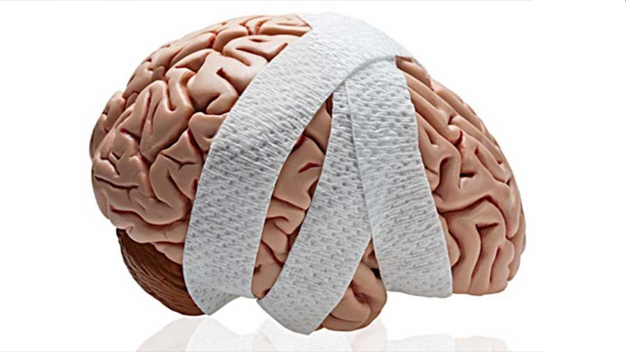 Los Mejores Abogados en Español de Lesiones Cerebrales Para Mayor Compensación en Alhambra California